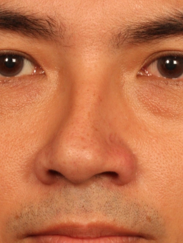 Wong Chin Ho - W Aesthetics Plastic Surgery - Crooked Nose