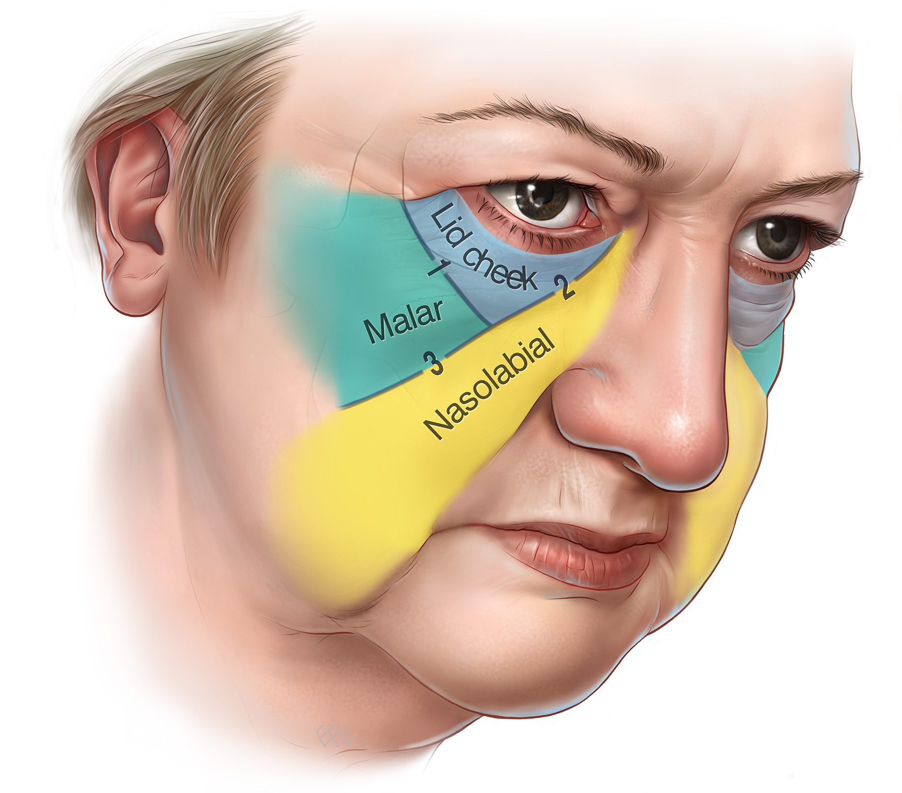 laser eye bag removal the best argireline anti aging eye cream