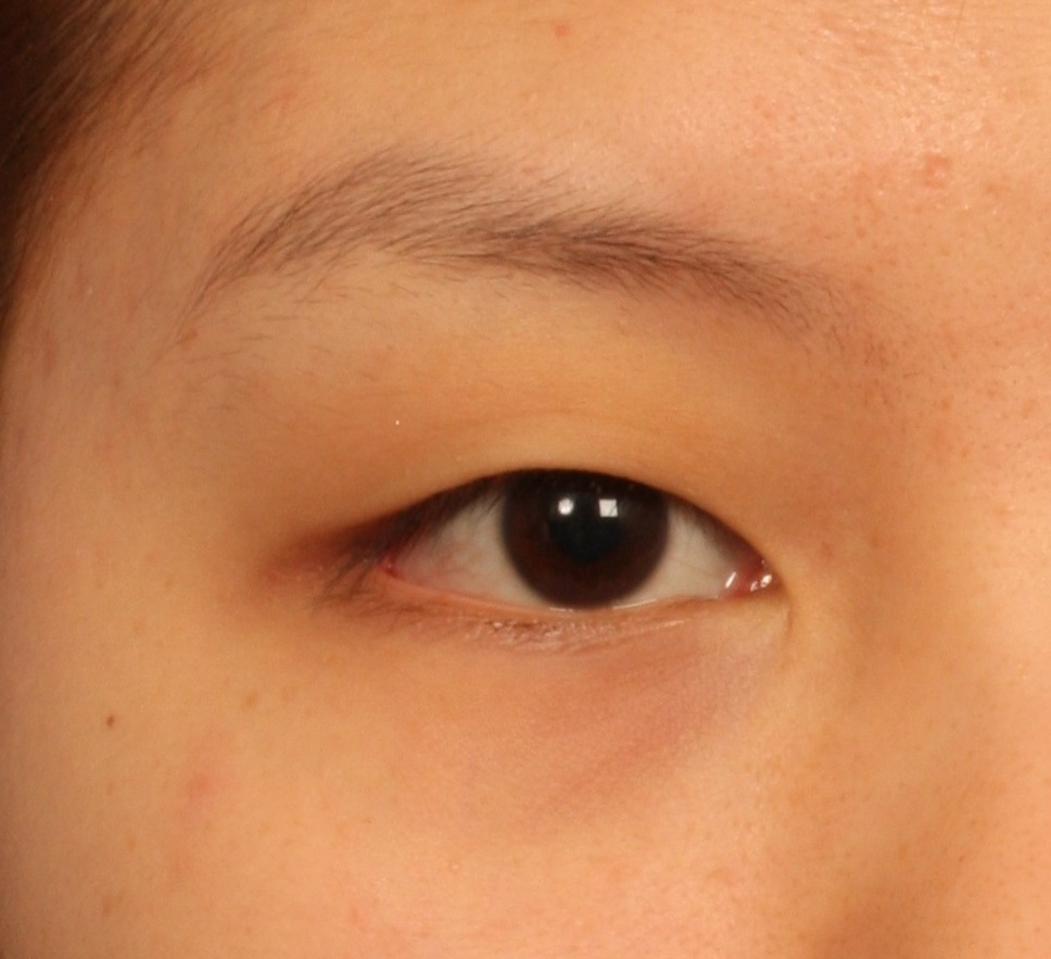 how to develop double eyelids naturally